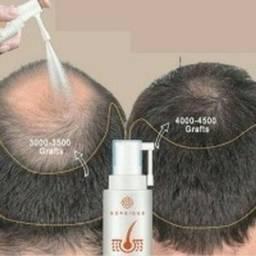 @Fluido para crescer cabelo imediato 1 un