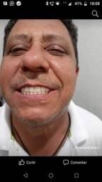 Título do anúncio: Prótese Dentária