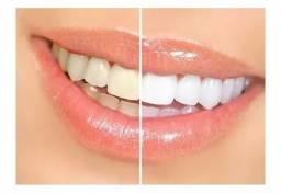 Gel Caseiro Dental