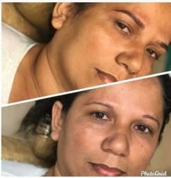 Título do anúncio: Micropigmentação