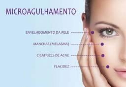 Microagulhamento Estética Pele
