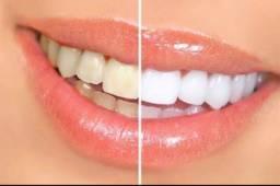 Clareamento / Dente Branco