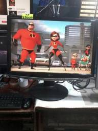 Monitores Anvisiom System