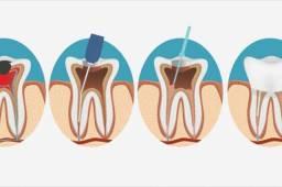 Dentista Endodontista